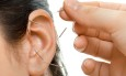 acupuncture therapy on auricle, horizontal very close up photo