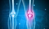 Ολική αρθροπλαστική γόνατος
