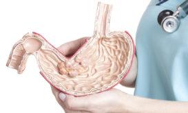 καρκίνος του στομάχου