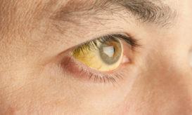 κίτρινα μάτια