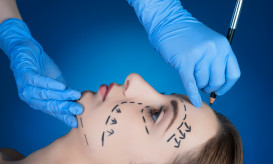 side view of patient, plastic surgery, doctor drawing correcting lines.