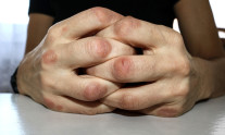 Hands affected by psoriasis on fingers and knuckles. A close view of redness caused by psoriasis on hands resting on a white table.