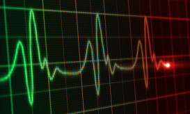 Electrocardiogram line on heart monitor.