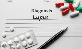 Lupus on the diagnosis list, medical concept