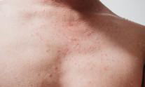 ill skin epifolliculitis with rash