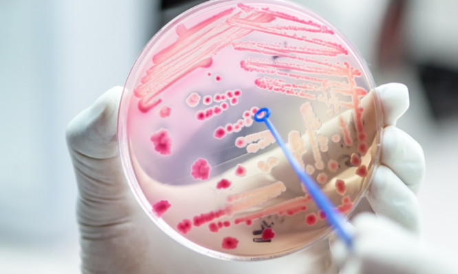 Escherichai coli colonies of pink bacteria ferment lactose culture on MacConkey agar in microbiology department hospital.