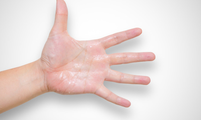 Hyperhidrosis wet hand from sweat syndrome