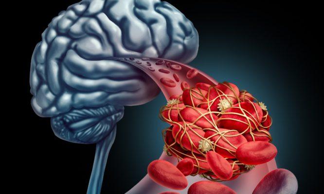ανεύρυσμα εγκεφάλου
