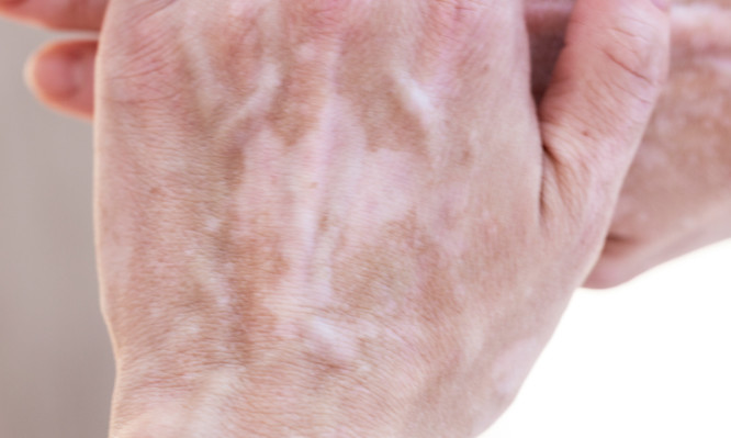 Hand with signs of vitiligo