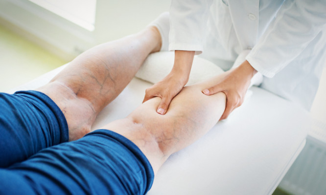 Closeup side view of unrecognizable female doctor massaging legs and calves of a senior female patient with visible varicose veins.