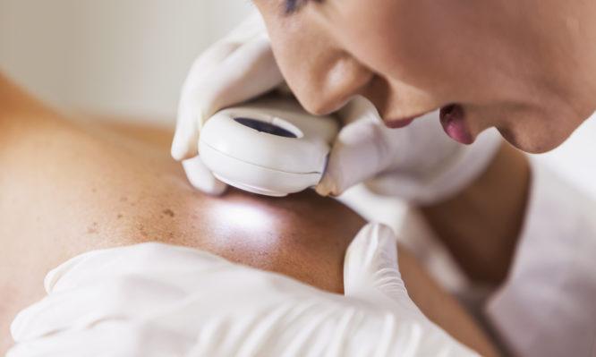Καρκίνος του δέρματος