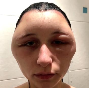 βαφή μαλλιών