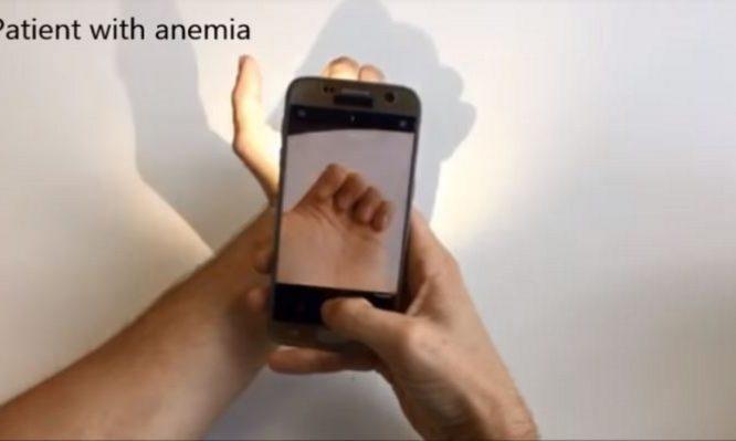 αναιμία