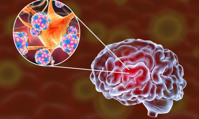 εγκεφαλίτιδα