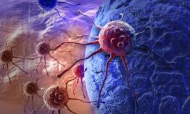 καρκίνος του παχέος εντέρου