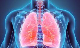 πνευμονικό οίδημα