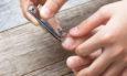 νύχι που μπαίνει στο δέρμα