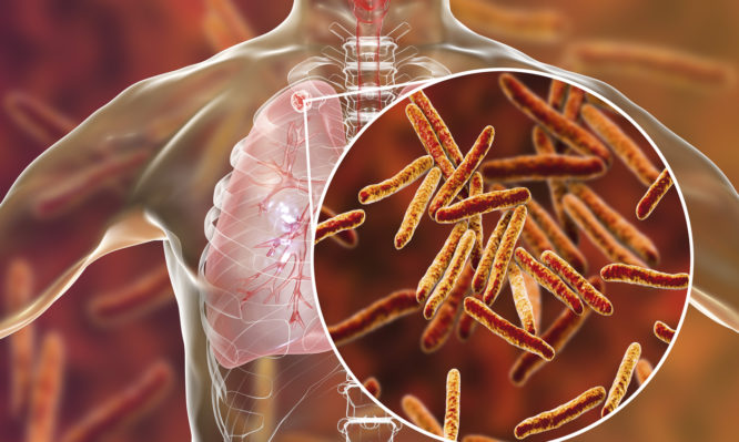 φυματίωση