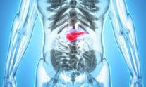 Καρκίνος στο πάγκρεας