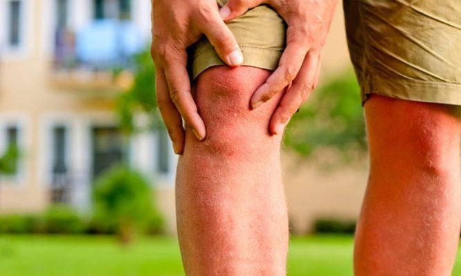 γόνατος