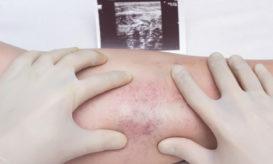 θρομβοεμβολική νόσος