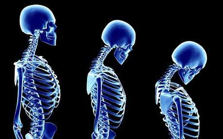 οστεοπόρωση