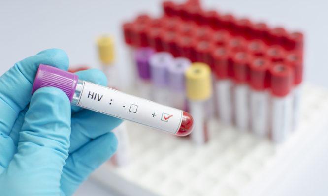 HIV-1 AIDS