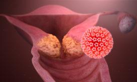 ιός HPV