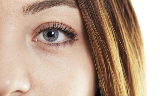 φακίδες στα μάτια