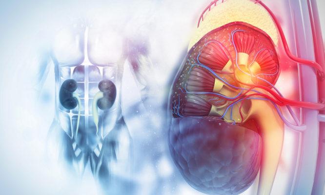 καρκίνος των νεφρών