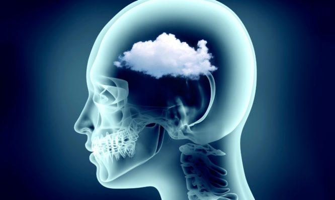 ομίχλη εγκεφάλου