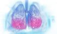καρκίνος του πναύμονα