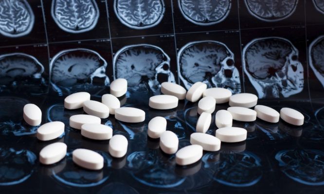 Αλτσχάιμερ
