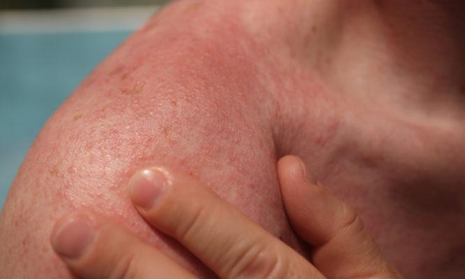 αλλεργία στον ήλιο