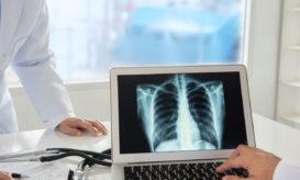 καρκίνος των πνευμόνων